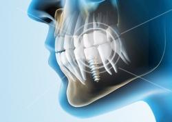Комплексная томография зубов