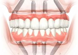 Вернем зубы за 24 часа!