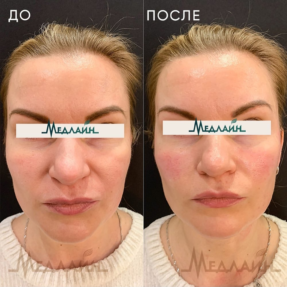 Комплексное омоложение препаратом ReDexis: лицо, шея, декольте препаратом ReDexis