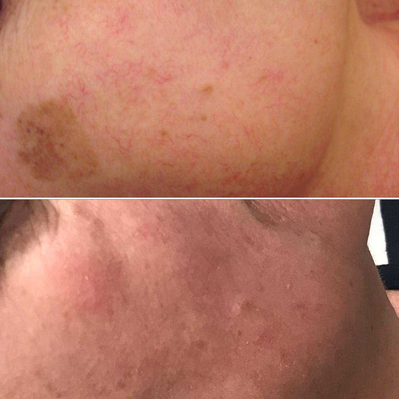 Виды пигментных пятен и причины их появления, в чем преимущество удаления лазером этой эстетической проблемы кожи, противопоказания и как проходит процедура.