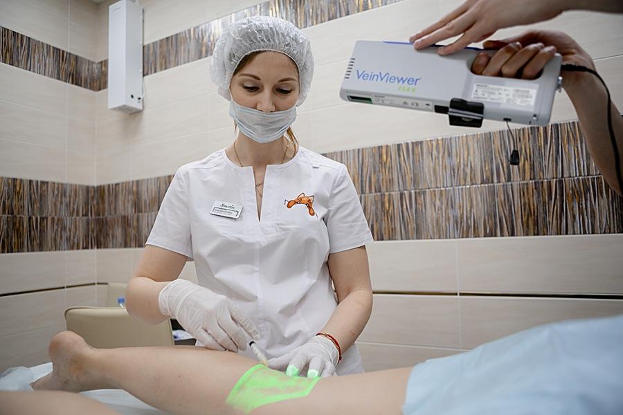 Лечение варикоза на ногах