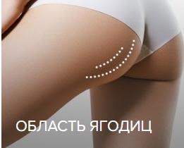 Безоперационная подтяжка лица и тела  нитями Аптос (APTOS)