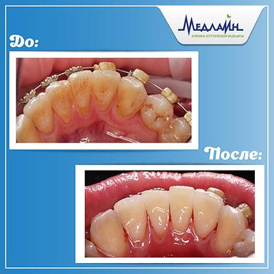 Профессиональная комплексная чистка зубов методом AirFlow