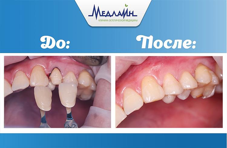 Восстановление зуба вкладками после лечения корневых каналов