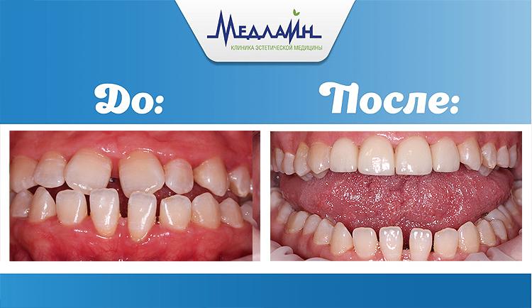 Исправление зубов верхней челюсти винирами в клинике МедЛайн
