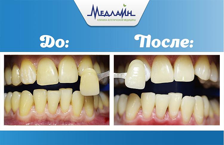 Результат отбеливания зубов в клинике МедЛайн