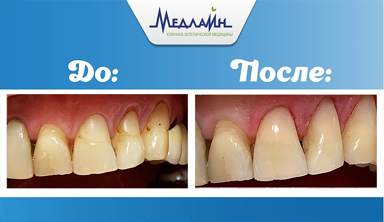 Результат реставрации зубов в клинике МедЛайн