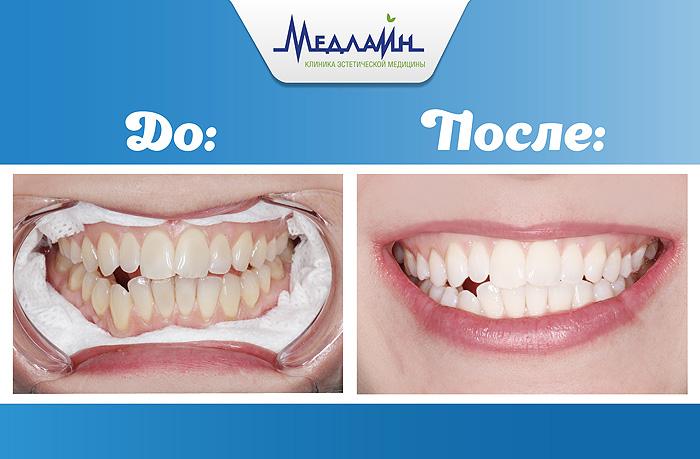 Результат отбеливания зубов в клинике МедЛайн  методом Zoom 4